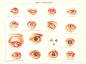 Augenkrankheiten, Augenheilkunde, Augenarzt